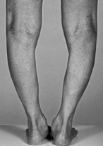 bowed legs