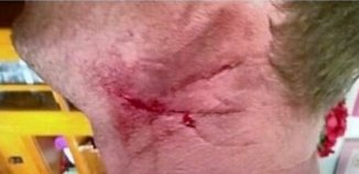 barb wire injuries to neck