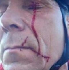 barb wire injury to face