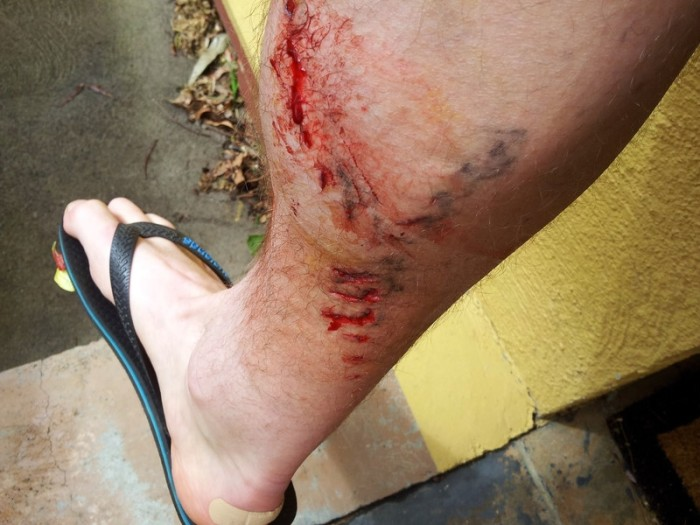 chainring wounds