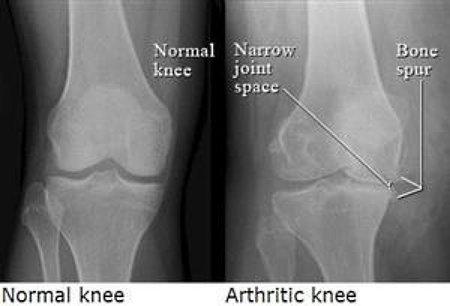 knee-xrays