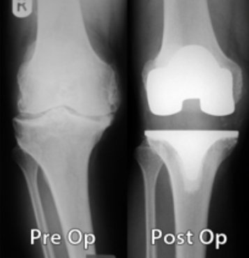 pre-post-op-knee-xrays